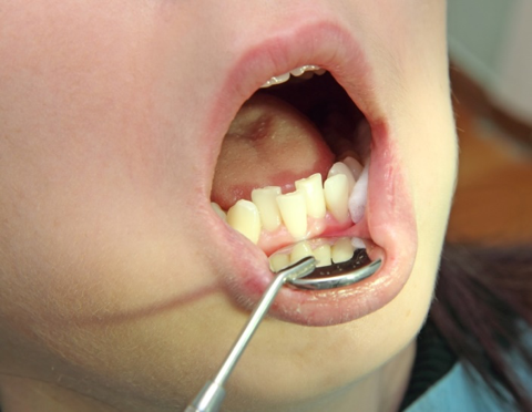 Esempio di denti storti